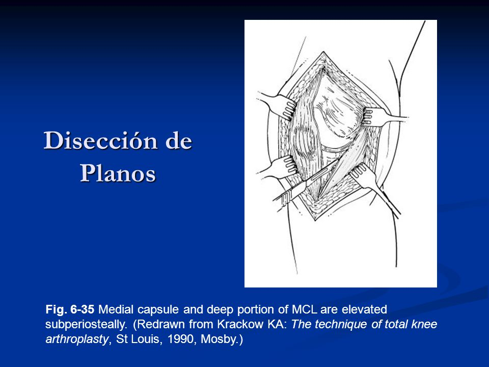 Disección de Planos Fig. 6-35 Medial capsule and deep portion of MCL are elevated subperiosteally. (Redrawn from Krackow KA: The technique of total kn