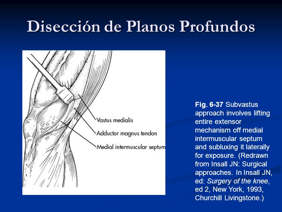 Disección de Planos Profundos Fig. 6-37 Subvastus approach involves lifting entire extensor mechanism off medial intermuscular septum and subluxing it