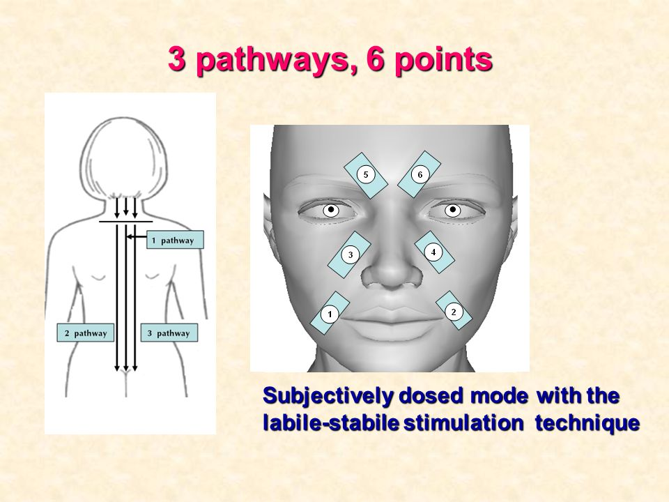 3 pathways, 6 points Subjectively dosed mode with the labile-stabile stimulation technique