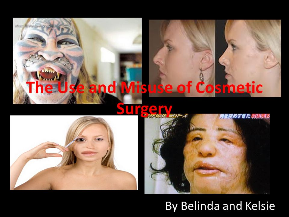 Have you ever thought about getting cosmetic surgery of any kind.