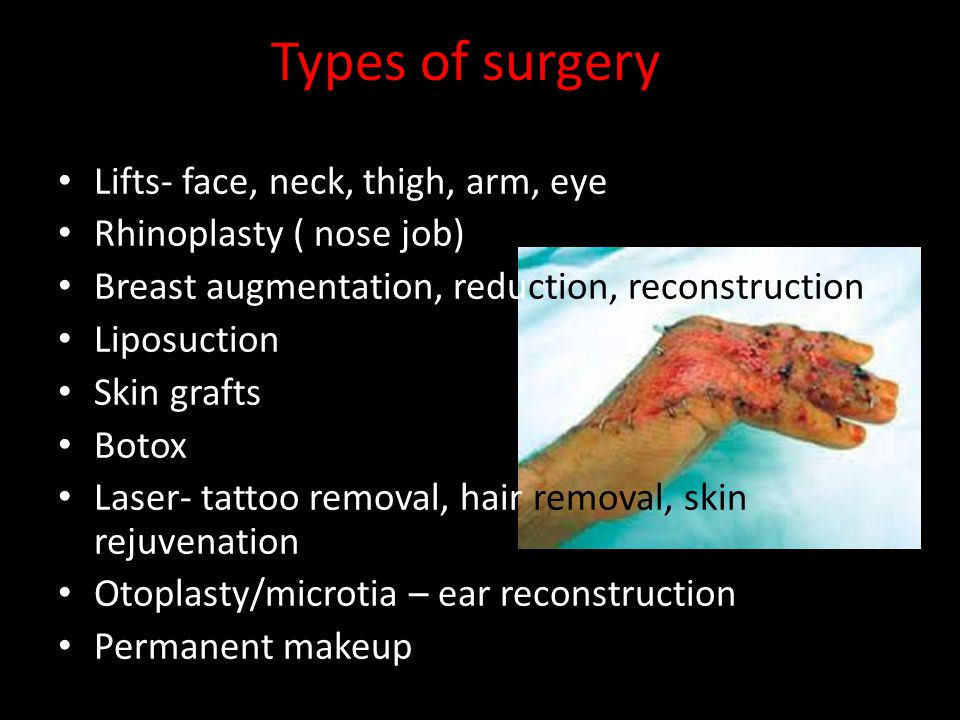 Types of surgery Lifts- face, neck, thigh, arm, eye Rhinoplasty ( nose job) Breast augmentation, reduction, reconstruction Liposuction Skin grafts Bot