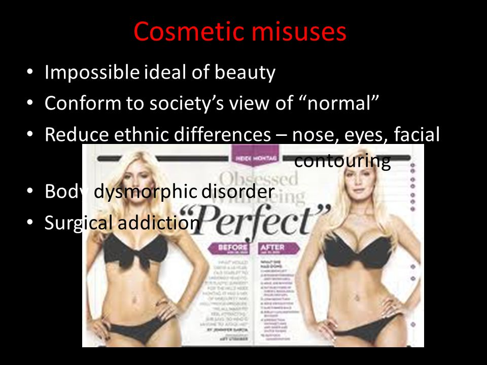 """Cosmetic misuses Impossible ideal of beauty Conform to society's view of """"normal"""" Reduce ethnic differences – nose, eyes, facial contouring Body dysmo"""