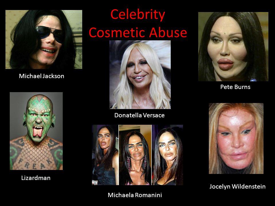 Celebrity Cosmetic Abuse Pete Burns Michael Jackson Donatella Versace Jocelyn Wildenstein Lizardman Michaela Romanini