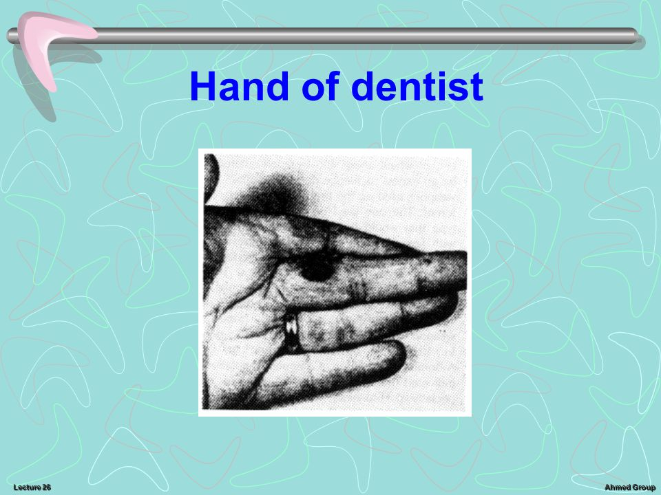 Ahmed Group Lecture 26 Hand of dentist