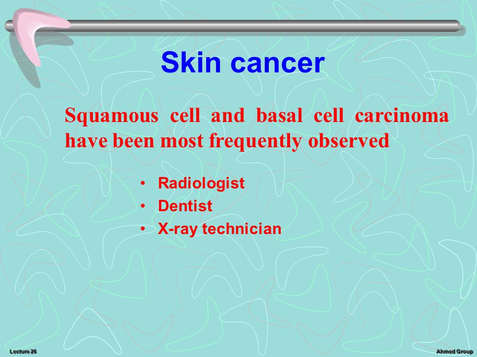 Ahmed Group Lecture 26 Skin cancer Radiologist Dentist X-ray technician Squamous cell and basal cell carcinoma have been most frequently observed