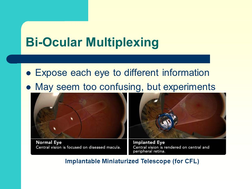 Bi-Ocular Multiplexing Expose each eye to different information May seem too confusing, but experiments show patients adapt Implantable Miniaturized Telescope (for CFL)