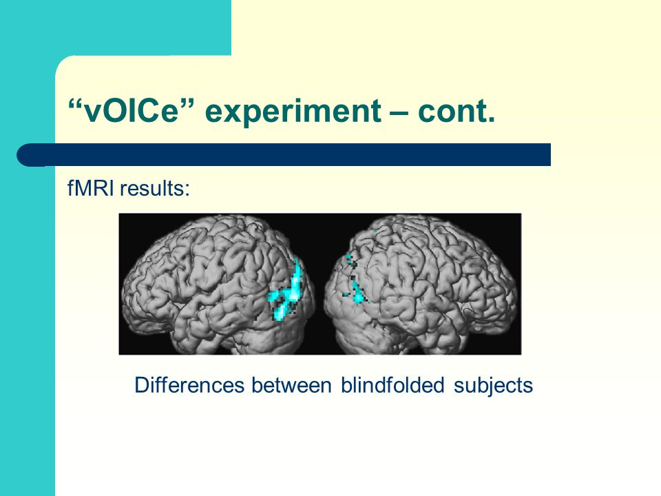 """vOICe"" experiment – cont. fMRI results: Differences between blindfolded subjects"