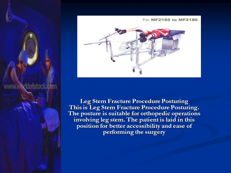 Leg Stem Fracture Procedure Posturing This is Leg Stem Fracture Procedure Posturing. The posture is suitable for orthopedic operations involving leg s