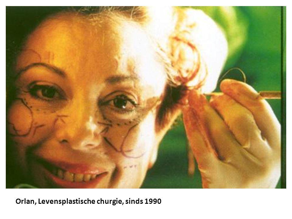 Orlan, Levensplastische churgie, sinds 1990