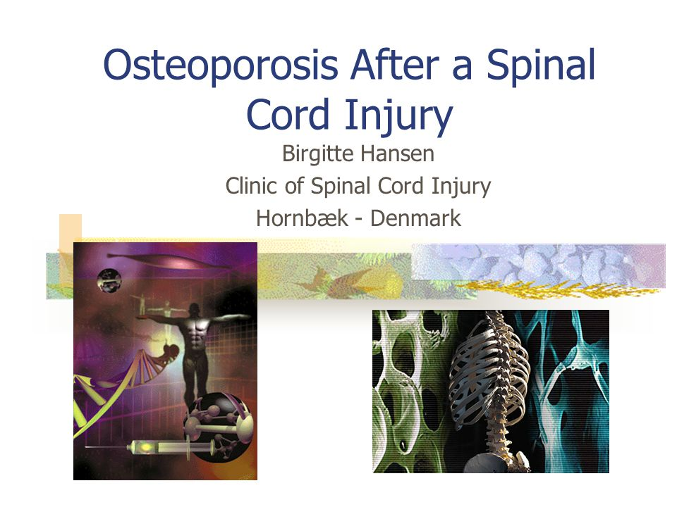 Osteoporosis After a Spinal Cord Injury Birgitte Hansen Clinic of Spinal Cord Injury Hornbæk - Denmark