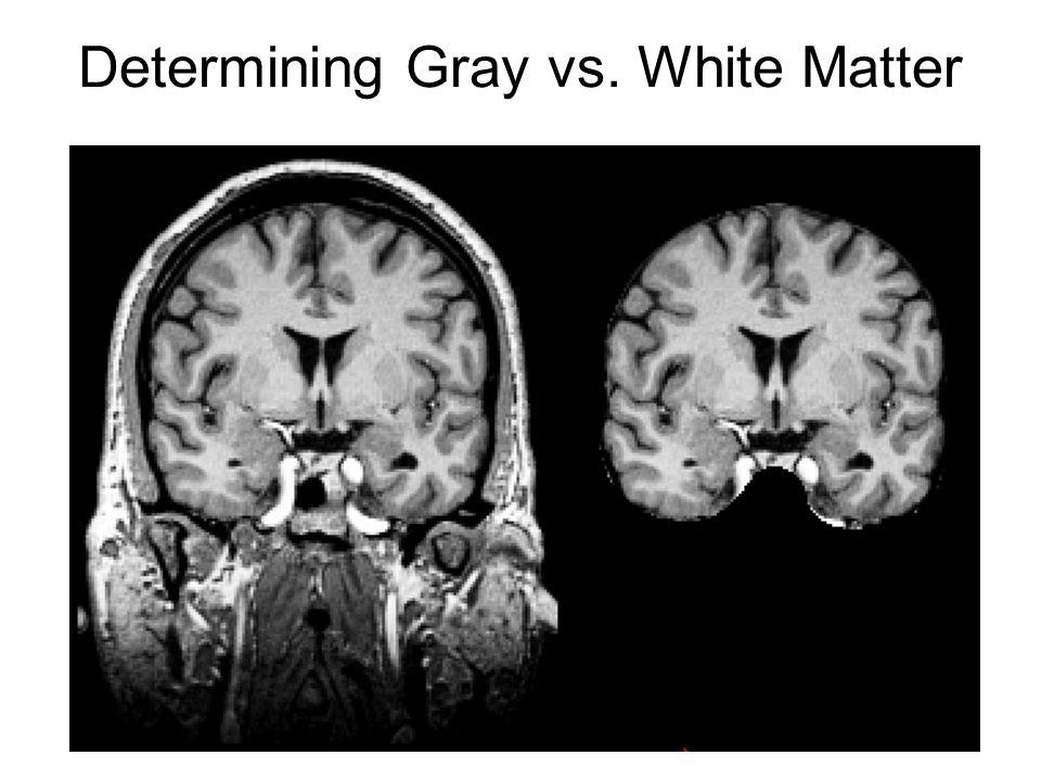 Determining Gray vs. White Matter