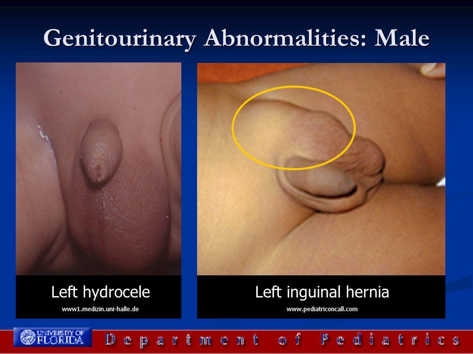 Genitourinary Abnormalities: Male Left hydrocele www1.medizin.uni-halle.de Left inguinal hernia www.pediatriconcall.com