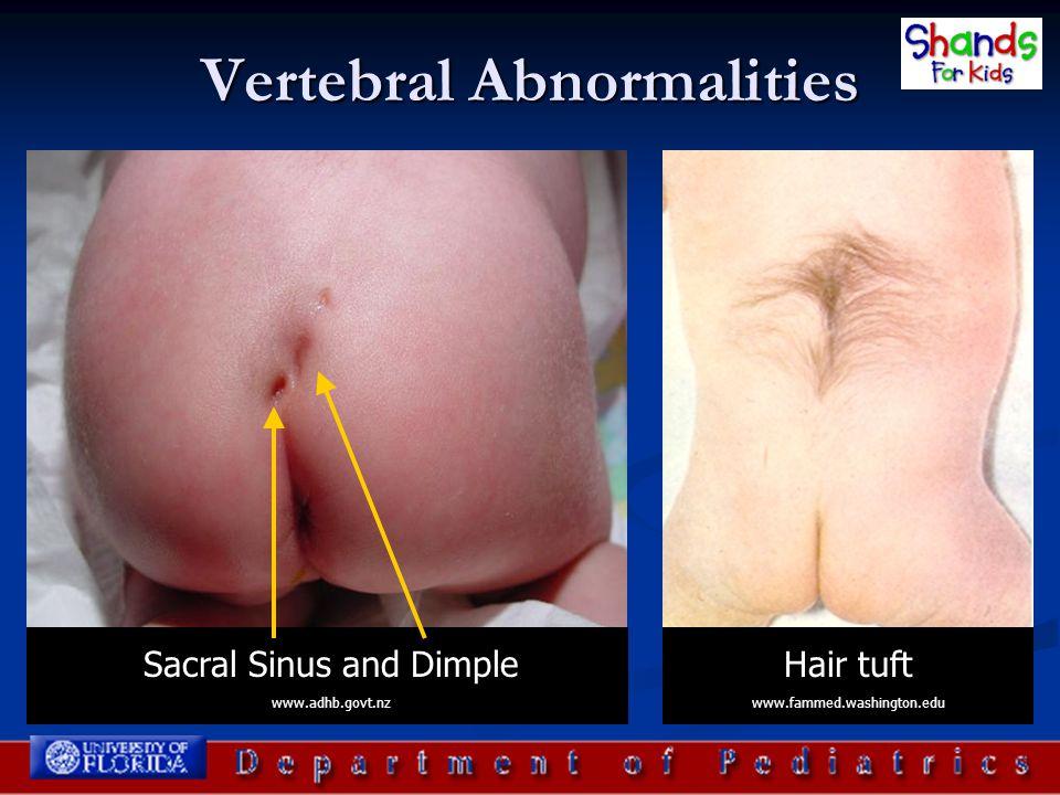 Vertebral Abnormalities Sacral Sinus and Dimple www.adhb.govt.nz Hair tuft www.fammed.washington.edu