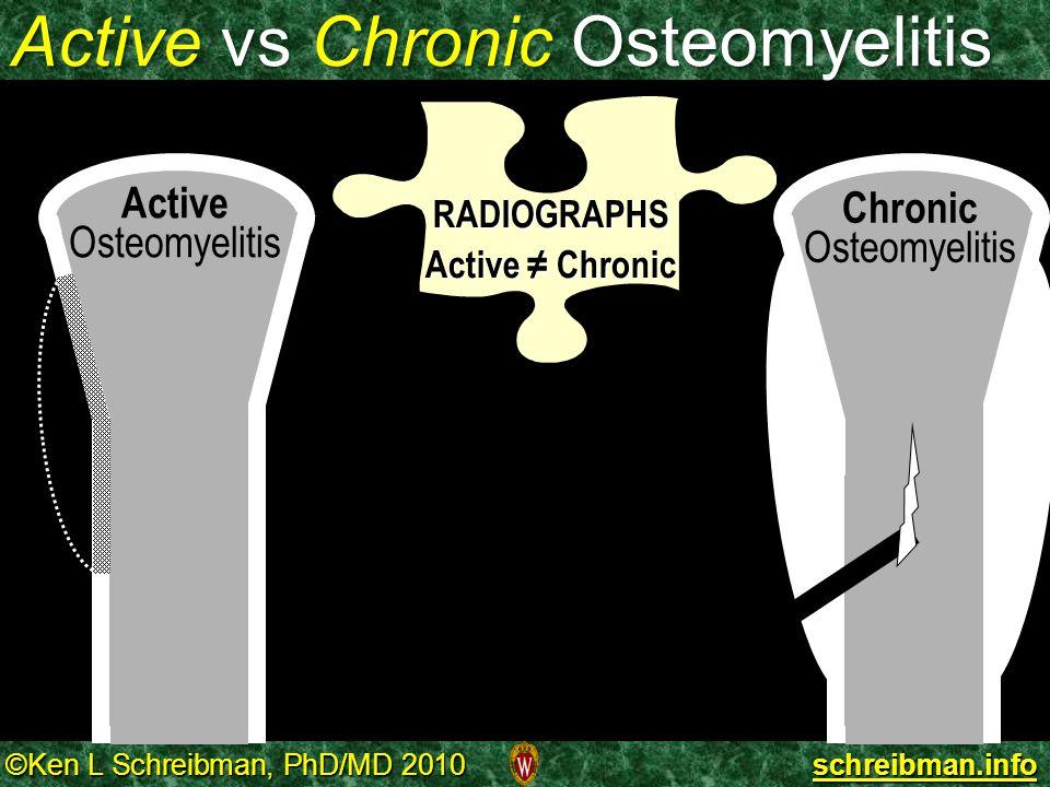 ©Ken L Schreibman, PhD/MD 2010 schreibman.info Active vs Chronic Osteomyelitis RADIOGRAPHS Active ≠ Chronic Active Osteomyelitis Chronic Osteomyelitis