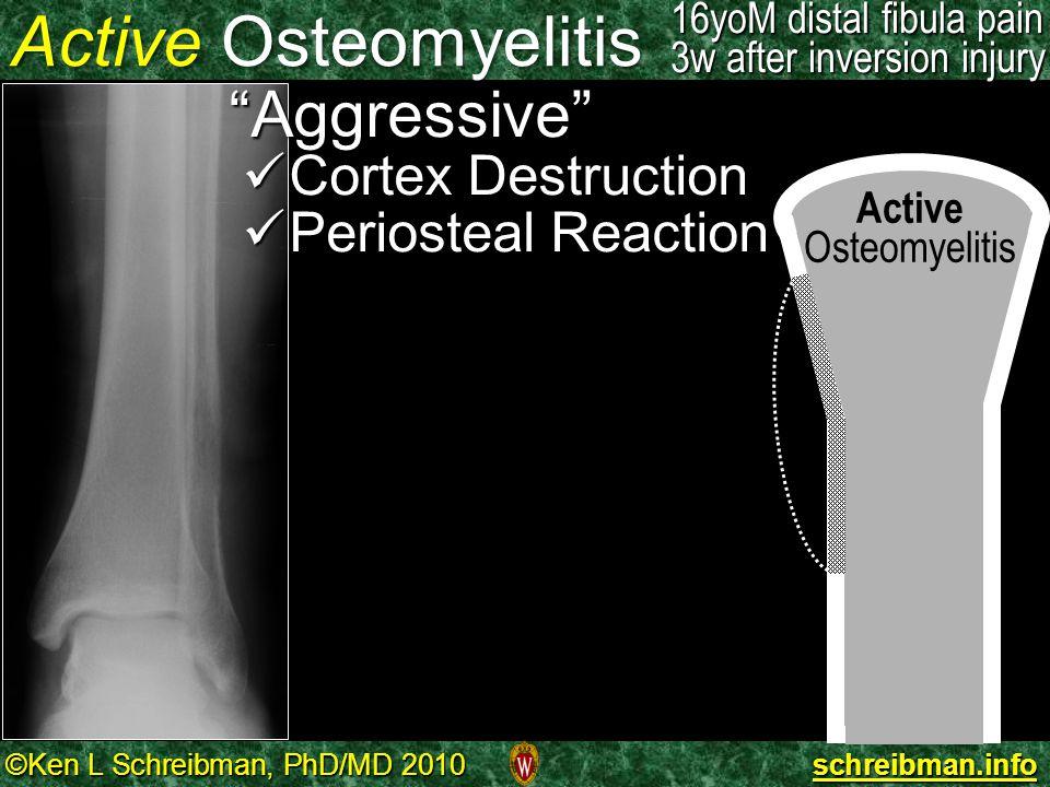 """©Ken L Schreibman, PhD/MD 2010 schreibman.info Active Osteomyelitis """"Aggressive"""" Cortex Destruction Cortex Destruction Periosteal Reaction Periosteal"""