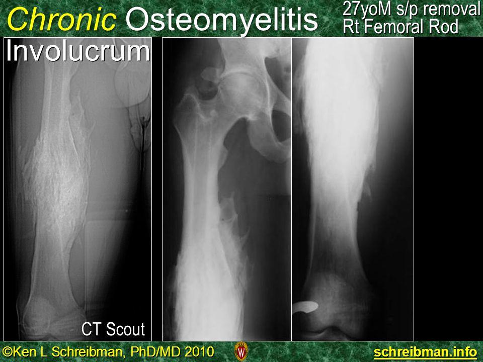©Ken L Schreibman, PhD/MD 2010 schreibman.info 27yoM s/p removal Rt Femoral Rod Chronic Osteomyelitis Involucrum 27yoM s/p removal Rt Femoral Rod CT S