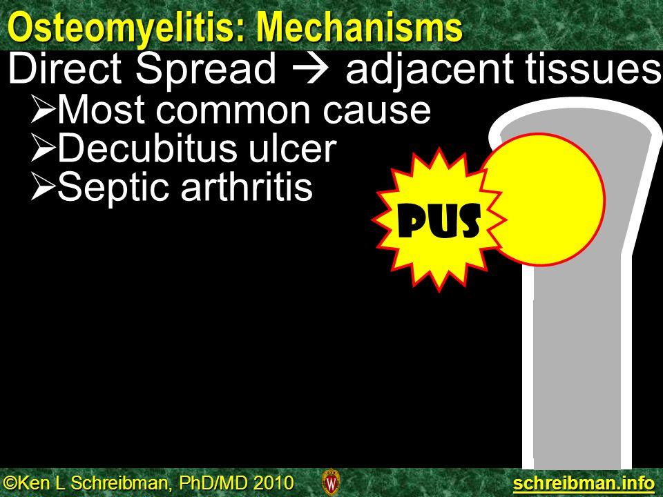 ©Ken L Schreibman, PhD/MD 2010 schreibman.info Osteomyelitis: Mechanisms Direct Spread  adjacent tissues   Most common cause   Decubitus ulcer 