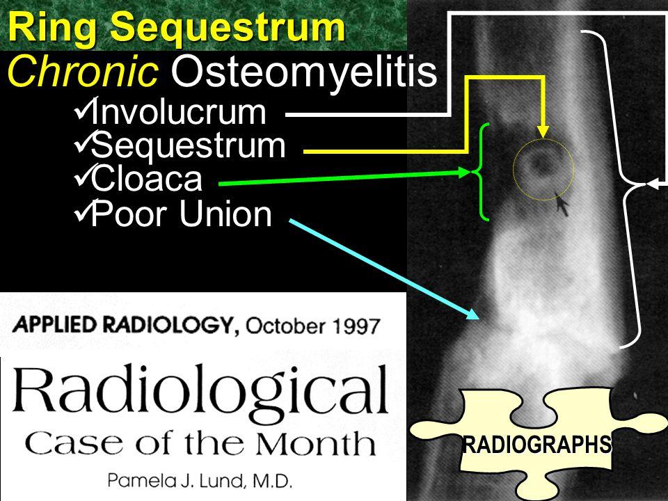 Ring Sequestrum Chronic Osteomyelitis Involucrum Sequestrum Cloaca Poor Union RADIOGRAPHS