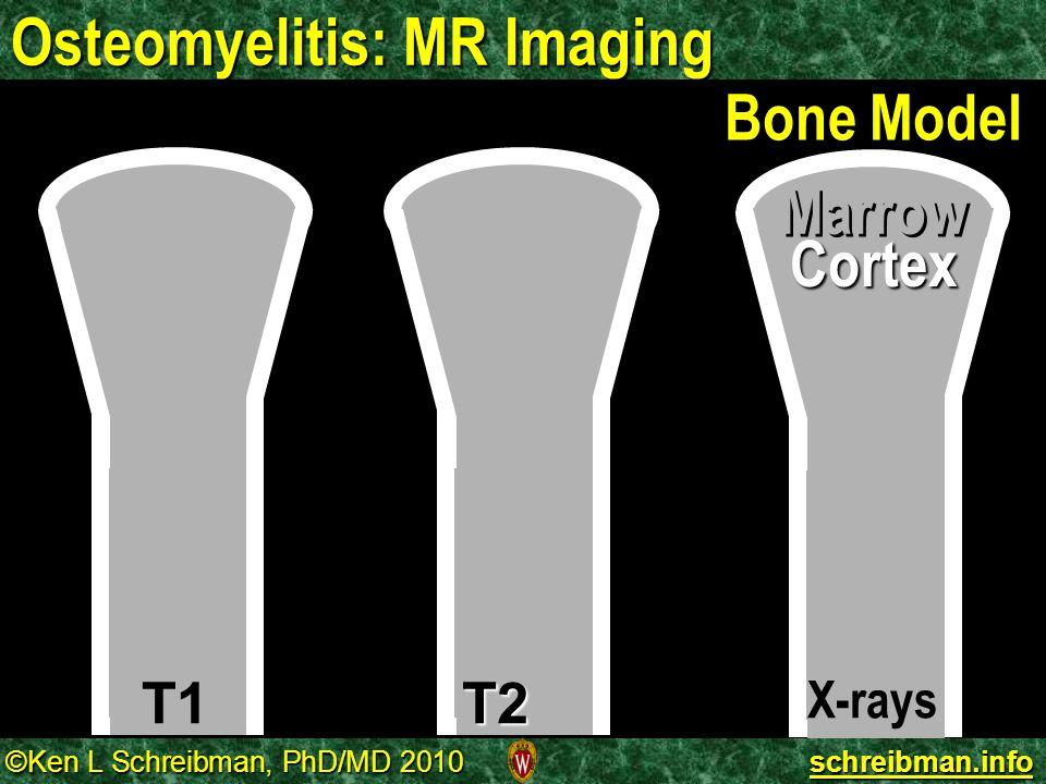©Ken L Schreibman, PhD/MD 2010 schreibman.info Osteomyelitis: MR Imaging T1T2 Bone Model X-rays Cortex Marrow