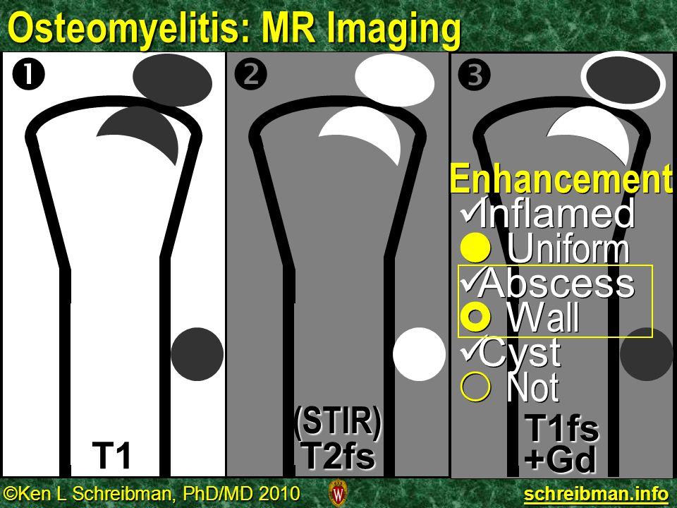 ©Ken L Schreibman, PhD/MD 2010 schreibman.info Osteomyelitis: MR Imaging T1 T1fs (STIR) T2fs   +Gd Enhancement Inflamed Inflamed  U niform Abscess