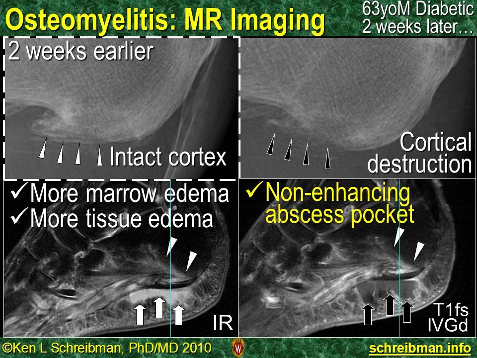 ©Ken L Schreibman, PhD/MD 2010 schreibman.info Osteomyelitis: MR Imaging 63yoM Diabetic 2 weeks later… Intact cortex 2 weeks earlier Cortical destruct