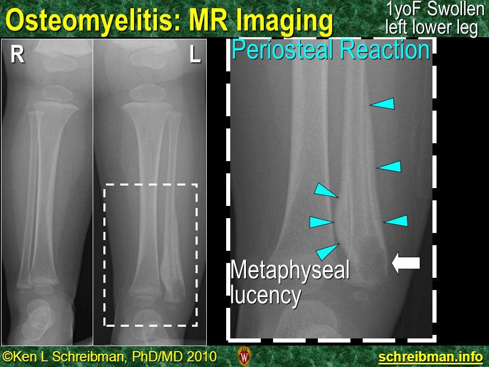 ©Ken L Schreibman, PhD/MD 2010 schreibman.info Osteomyelitis: MR Imaging 1yoF Swollen left lower leg RL Periosteal Reaction Metaphyseal lucency Metaph