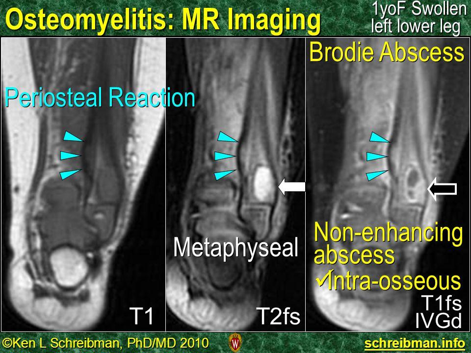 ©Ken L Schreibman, PhD/MD 2010 schreibman.info Osteomyelitis: MR Imaging 1yoF Swollen left lower leg T1 T1fsIVGd T2fs Periosteal Reaction Metaphyseal