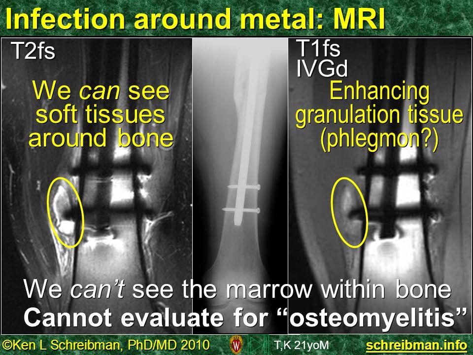 ©Ken L Schreibman, PhD/MD 2010 schreibman.info Infection around metal: MRI T,K 21yoM T2fsT1fsIVGd We can see soft tissues around bone Enhancing granul