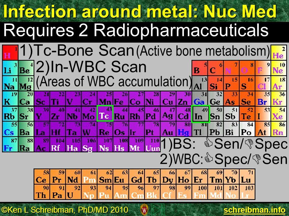 ©Ken L Schreibman, PhD/MD 2010 schreibman.info Infection around metal: Nuc Med Requires 2 Radiopharmaceuticals 1) 1)Tc-Bone Scan (Active bone metaboli