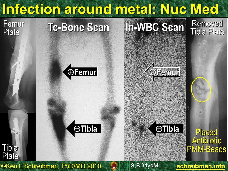 ©Ken L Schreibman, PhD/MD 2010 schreibman.info Infection around metal: Nuc Med  Femur  Tibia  Femur  Tibia S,B 31yoM Tc-Bone Scan In-WBC Scan Remo