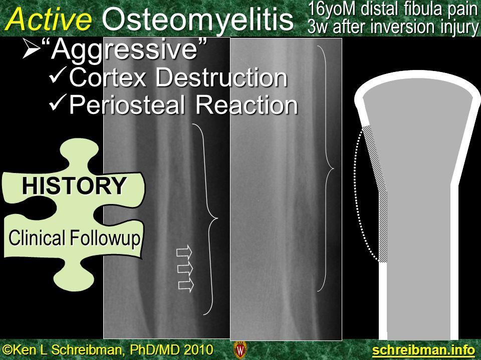©Ken L Schreibman, PhD/MD 2010 schreibman.info Active Osteomyelitis 16yoM distal fibula pain 3w after inversion injury HISTORY Clinical Followup Clini