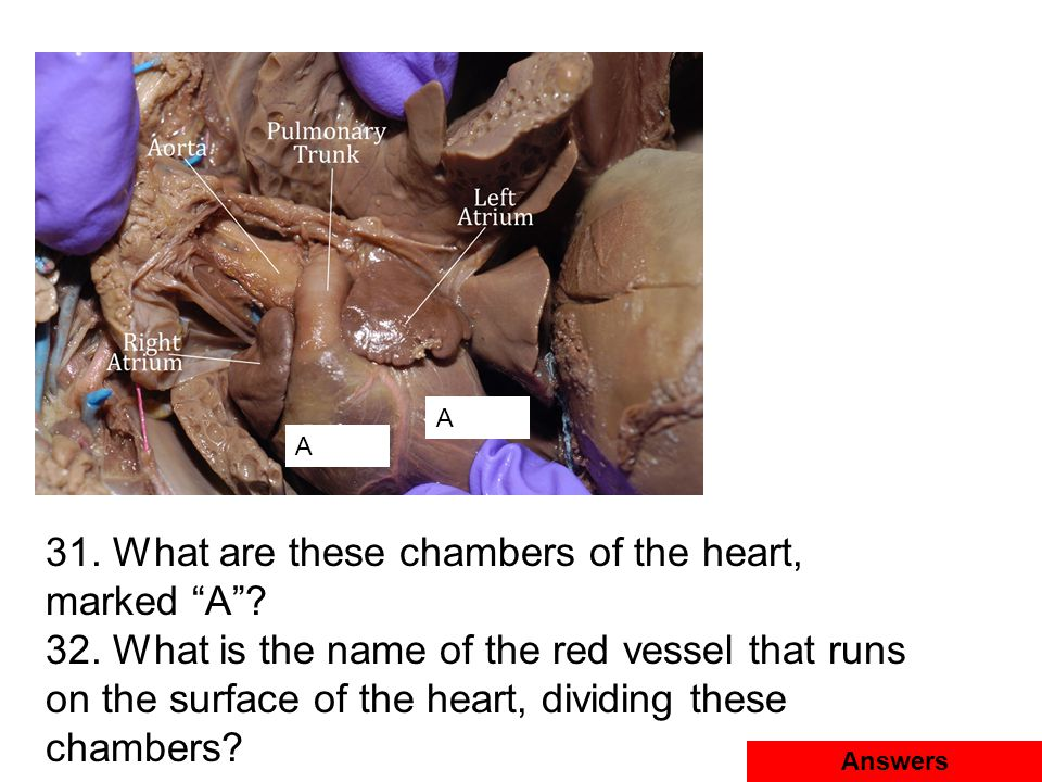 """A A 31. What are these chambers of the heart, marked """"A""""? 32. What is the name of the red vessel that runs on the surface of the heart, dividing these"""