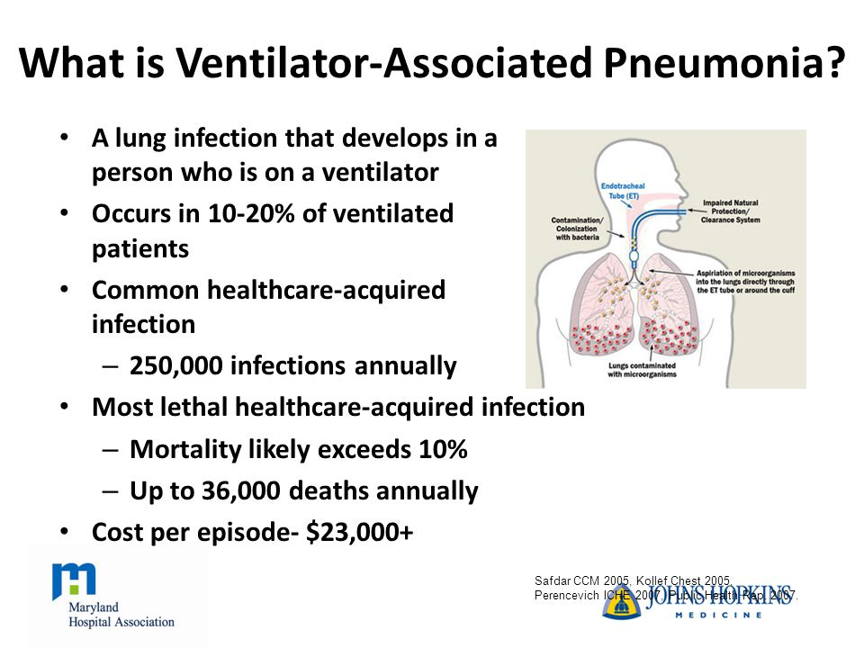 What is Ventilator-Associated Pneumonia.