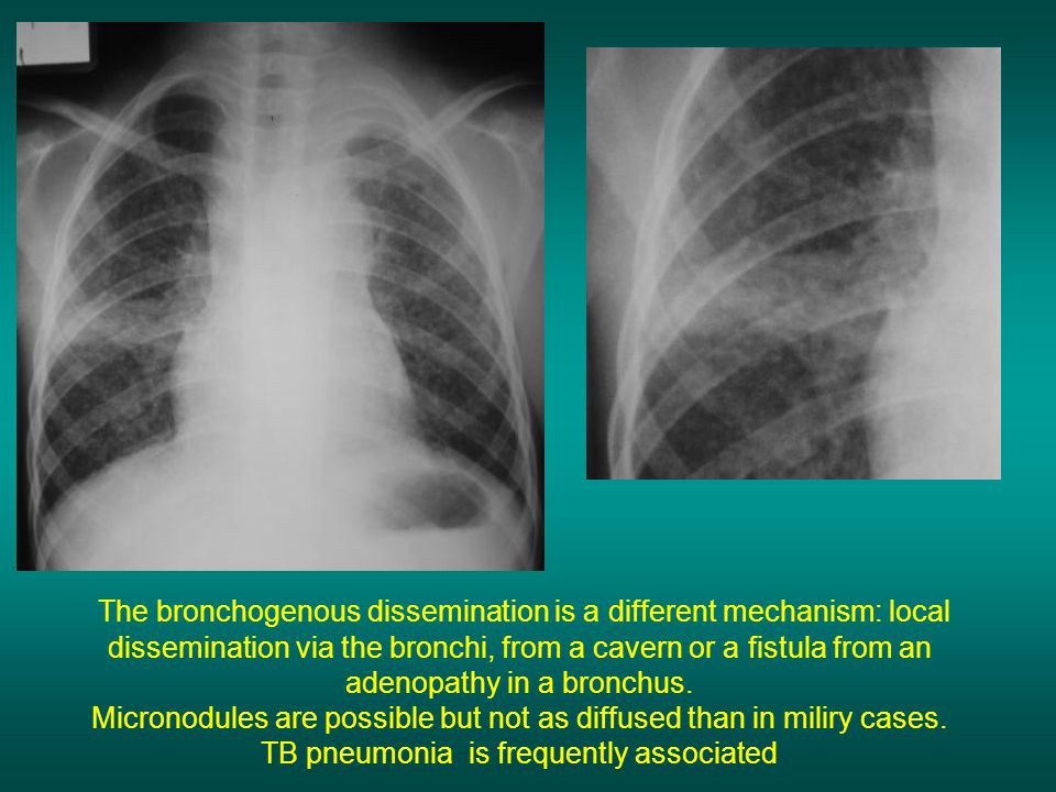 The bronchogenous dissemination is a different mechanism: local dissemination via the bronchi, from a cavern or a fistula from an adenopathy in a bronchus.
