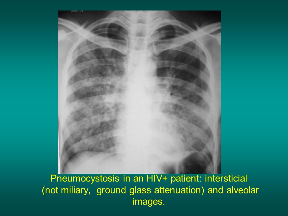 Pneumocystosis in an HIV+ patient: intersticial (not miliary, ground glass attenuation) and alveolar images.