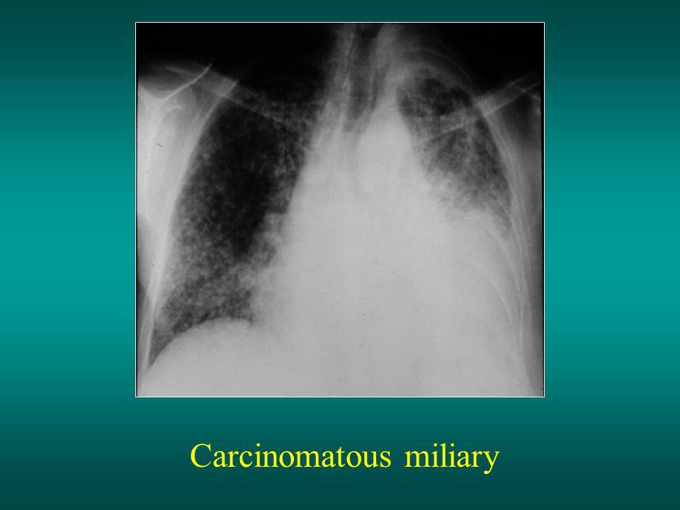 Carcinomatous miliary