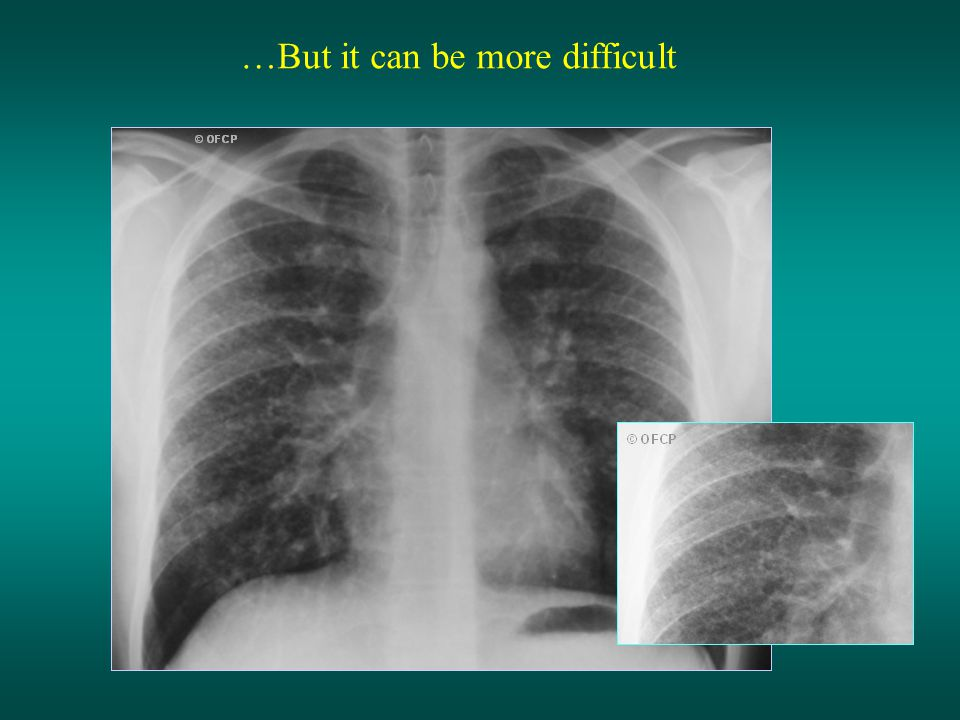 Tubercular miliary (1) The diagnosis of miliary requires a chest radio of good quality and careful analysis of the image The radiological image is composed of diffuse micronodules < 3mm, or nodules from 3 to 6 mm The images are often barely visible General signs and dyspnea are generally severe in cases of miliary TB.