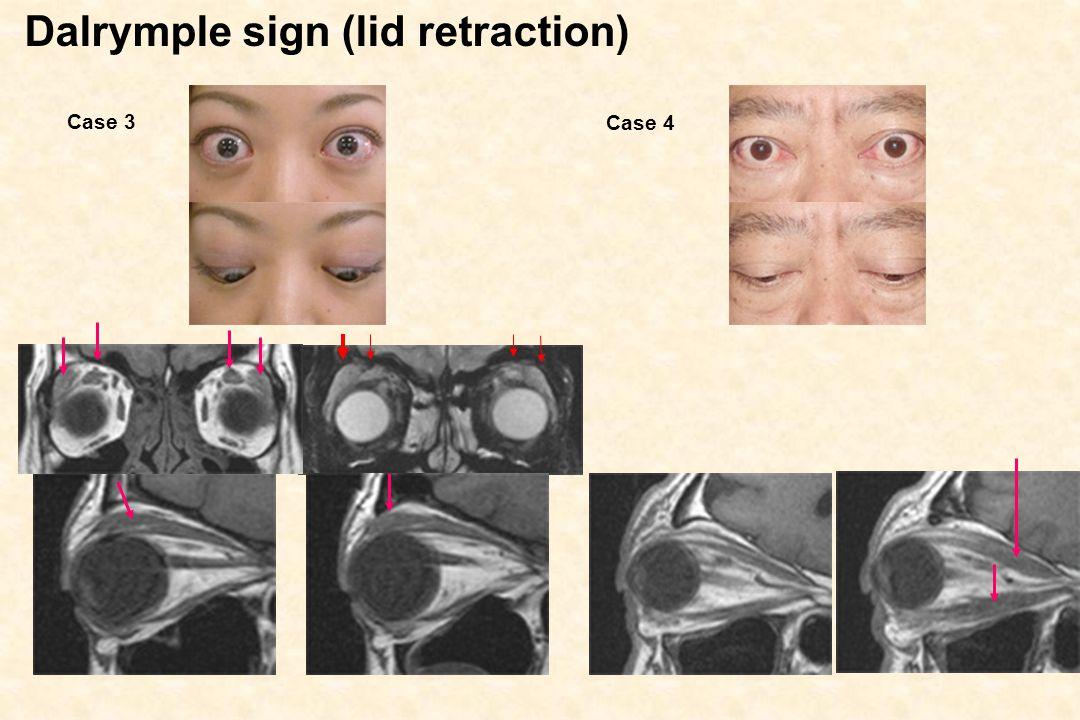 Dalrymple sign (lid retraction) Case 3 Case 4