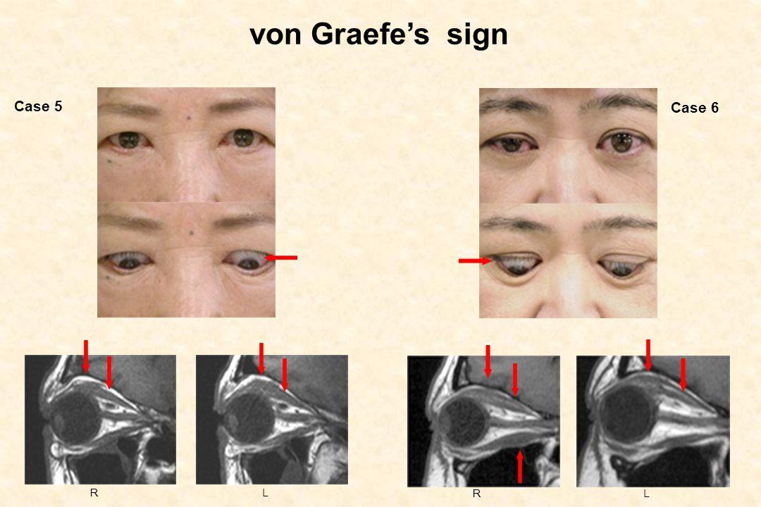 von Graefe's sign RLRL Case 5 Case 6
