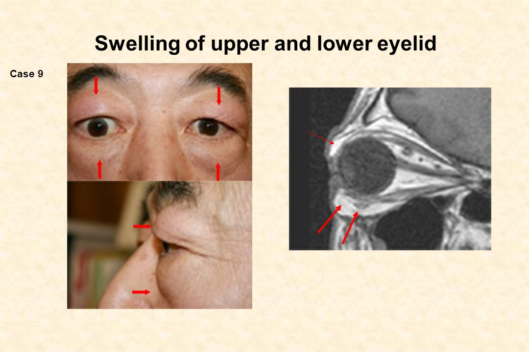 Swelling of upper and lower eyelid Case 9