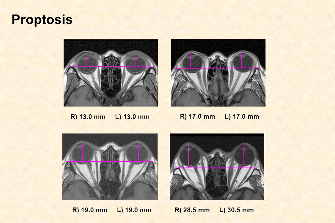 Proptosis R) 13.0 mm L) 13.0 mm R) 17.0 mm L) 17.0 mm R) 19.0 mm L) 19.0 mm R) 28.5 mm L) 30.5 mm