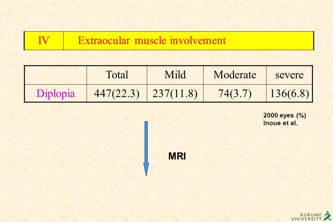 MRI IV Extraocular muscle involvement TotalMildModeratesevere Diplopia447(22.3)237(11.8)74(3.7)136(6.8) 2000 eyes (%) Inoue et al.