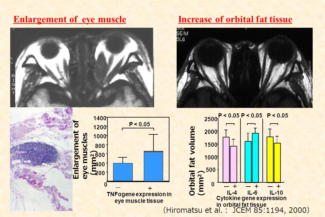 Enlargement of eye muscles ( mm 2 ) ー + 0 200 400 600 800 1000 1200 1400 TNFαgene expression in eye muscle tissue P < 0.05 0 500 1000 1500 2000 2500 O