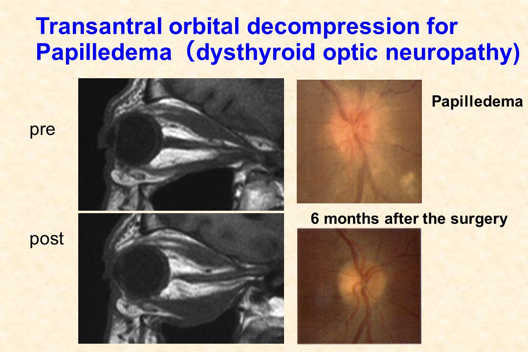Transantral orbital decompression for Papilledema ( dysthyroid optic neuropathy) pre post Papilledema 6 months after the surgery