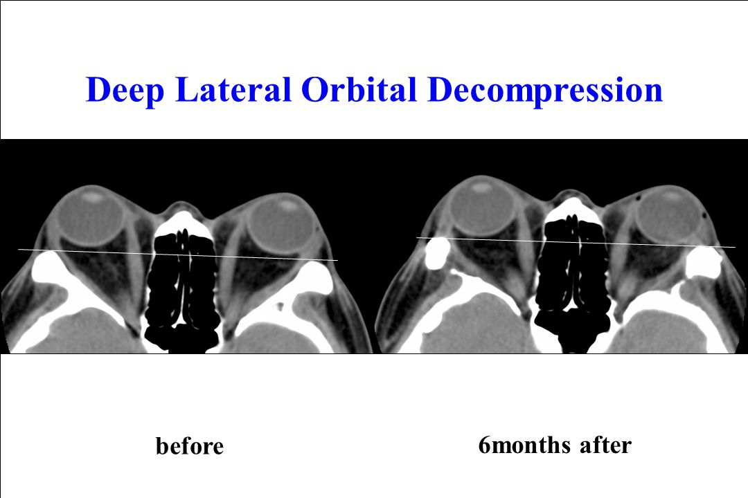 6months after before Deep Lateral Orbital Decompression