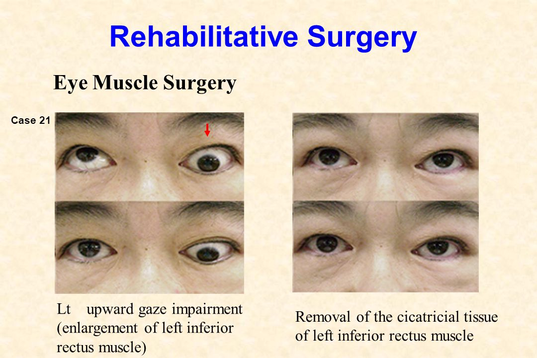 Rehabilitative Surgery Eye Muscle Surgery Removal of the cicatricial tissue of left inferior rectus muscle Lt upward gaze impairment (enlargement of l