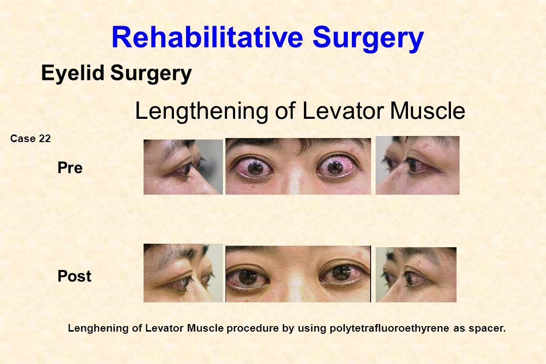 Pre Post Rehabilitative Surgery Eyelid Surgery Lengthening of Levator Muscle Lenghening of Levator Muscle procedure by using polytetrafluoroethyrene a