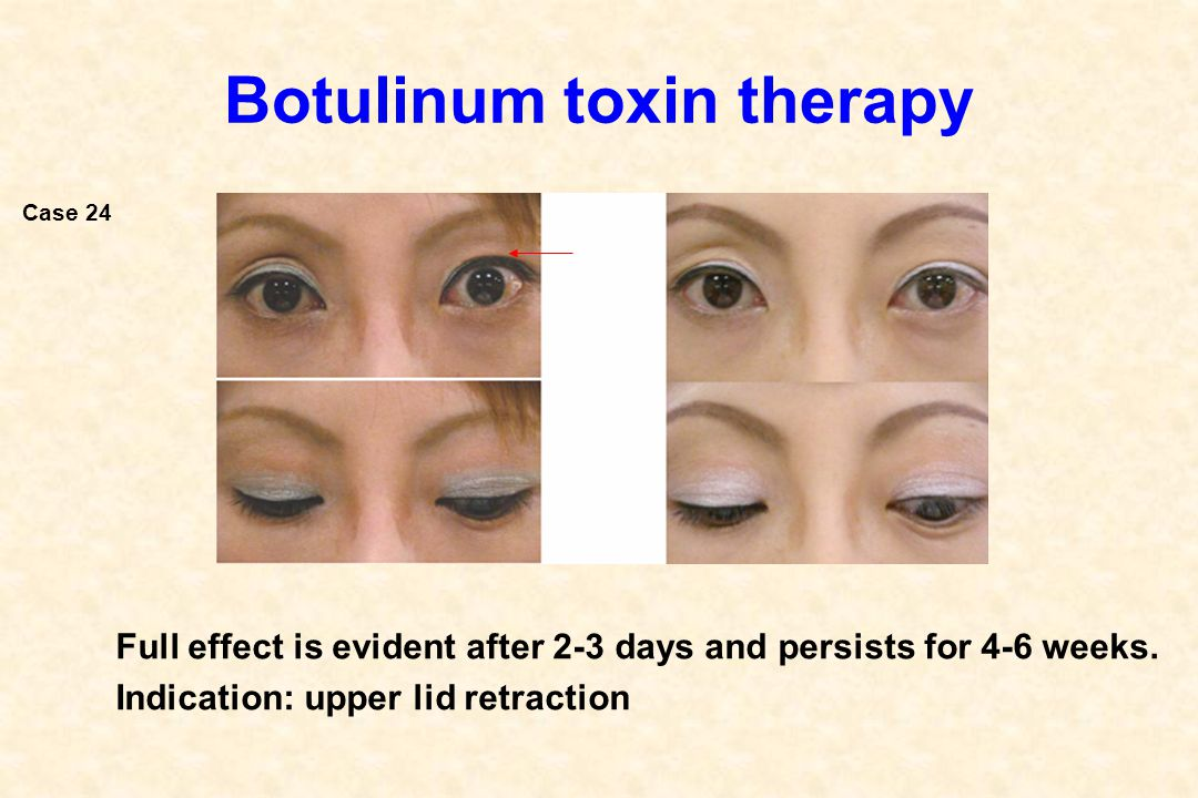 Botulinum toxin therapy Full effect is evident after 2-3 days and persists for 4-6 weeks. Indication: upper lid retraction Case 24