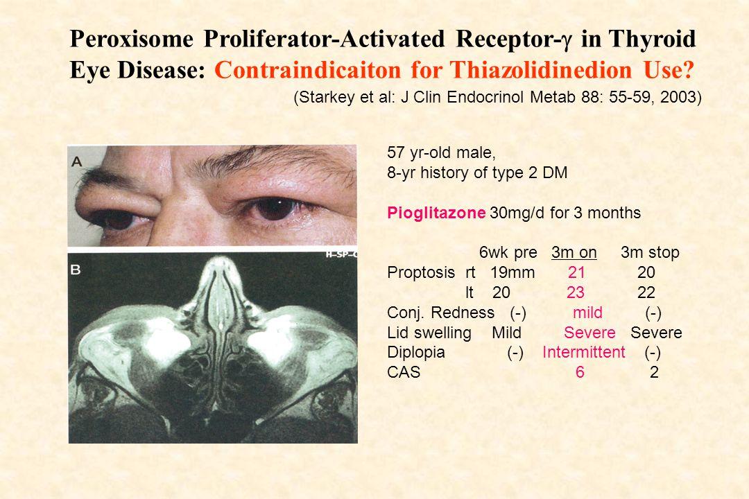Thiazolidinedione induced Graves' ophthalmopathy Starkey K, Heufelder A, Baker G, Joba W, Evans M, Davies S, Ludgate M.