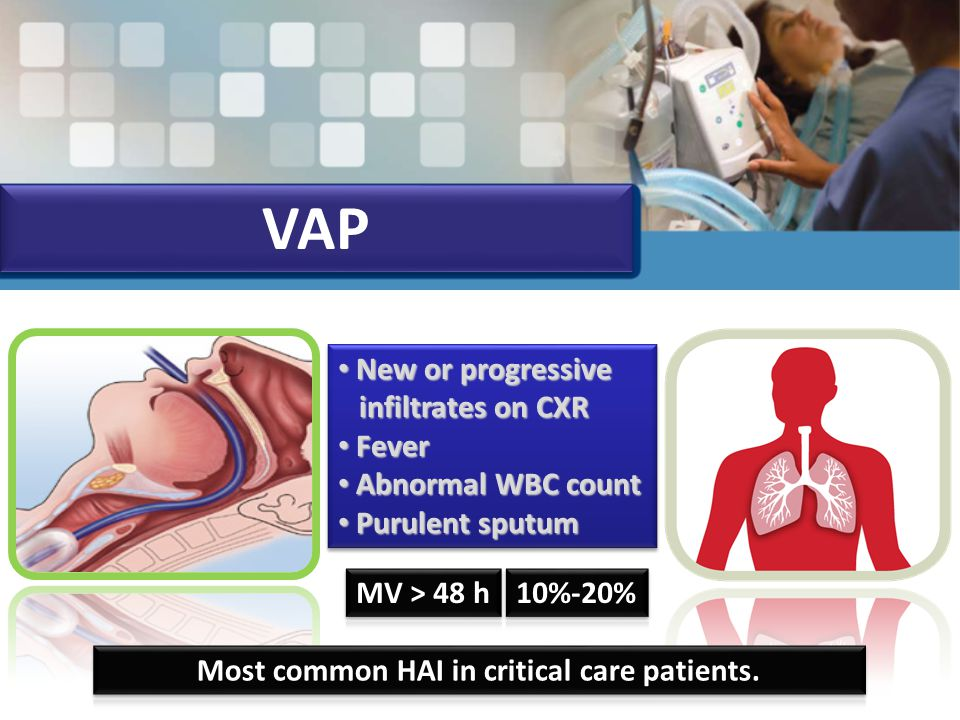 VAP New or progressive infiltrates on CXR New or progressive infiltrates on CXR Fever Fever Abnormal WBC count Abnormal WBC count Purulent sputum Purulent sputum New or progressive infiltrates on CXR New or progressive infiltrates on CXR Fever Fever Abnormal WBC count Abnormal WBC count Purulent sputum Purulent sputum
